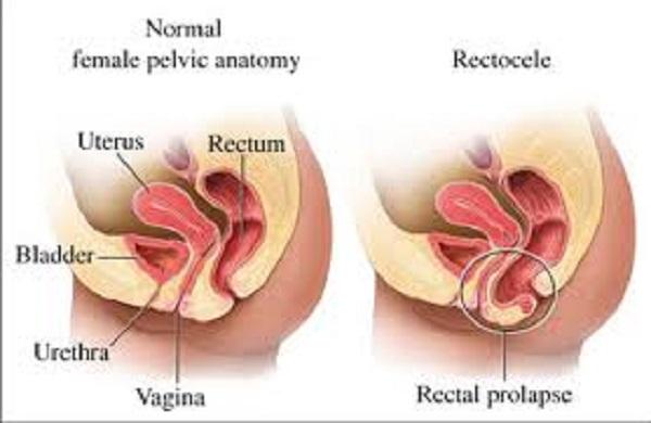 Sa sinh dục gây ảnh hưởng lớn đến cuộc sống phụ nữ.