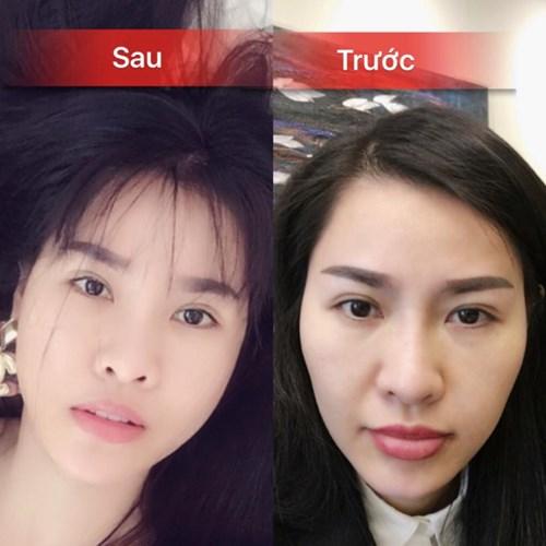 Hình ảnh trước và sau khi phẫu thuật thẩm mỹ lần 1 của Quế Vân. (Ảnh: Zing.vn)