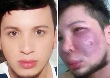 Gương mặt trước và sau khi độn má của Trujillo. Ảnh: Daily Mail.