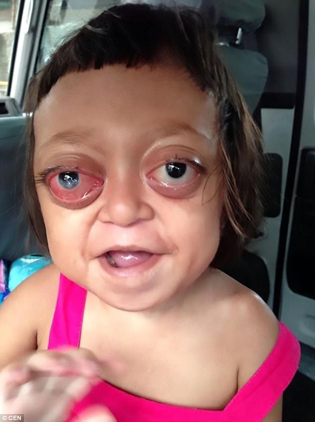 Hội chứng Crouzon khiến đôi mắt Anabelle bị lồi to.