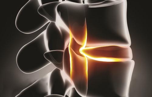Hình minh họa bệnh thoái hóa cột sống thắt lưng . Ảnh: BSCC.