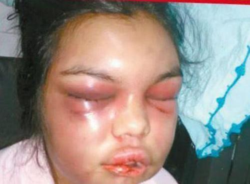 Khuôn mặt của Ortigoza sau nhiều ngày bị chồng đánh đấm hành hạ.