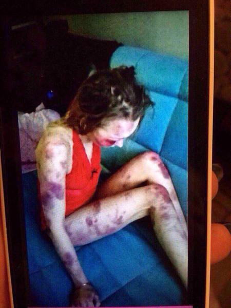 Đòi chia tay, vợ bị chồng đánh bầm dập rồi chụp ảnh khoe bạn