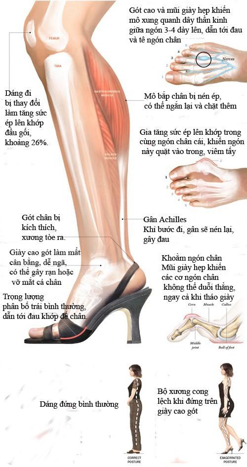 Hậu quả khôn lường khi đi giày cao gót.