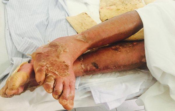 Một bệnh nhân tại trung tâm bị bong tróc da toàn thân do dị ứng thuốc