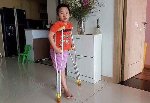 Cháu Trần Chí Kiên đã bắt đầu tập đi bằng nạng. Ảnh gia đình cung cấp