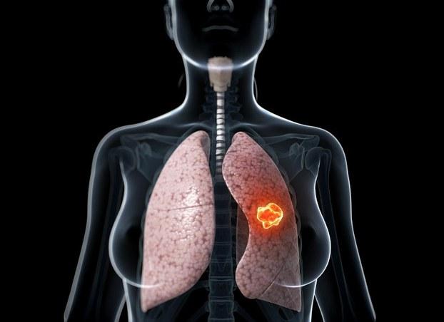 Dấu hiệu tỉnh giấc nửa đêm thường xuyên cần phải quan tâm đặc biệt, có khả năng liên quan đến bệnh về phổi (Ảnh: Internet)