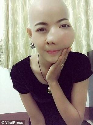 Jennie Yoo đang bị ung thư miệng giai đoạn cuối với phần má sưng to, không thể ăn, uống hay nói chuyện. Ảnh: ViraPress.