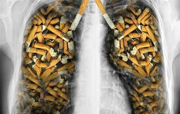 Người hút thuốc lá có nguy cơ cao bị ung thư phổi