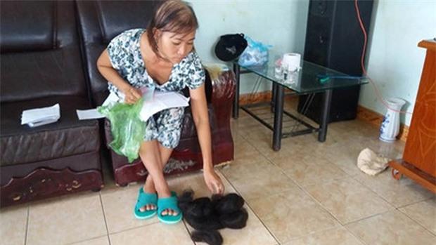 Bà Tú bên bộ tóc đã rụng, nghi do nhiễm chất độc từ việc ngộ độc thuốc diệt cỏ paraquat. Ảnh: PV