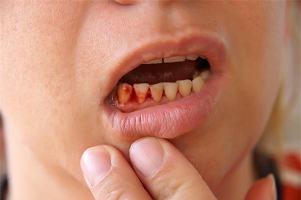 Nướu bị chảy máu khi đánh răng có thể là dấu hiệu cho thấy bạn bị viêm nướu (Ảnh minh họa)