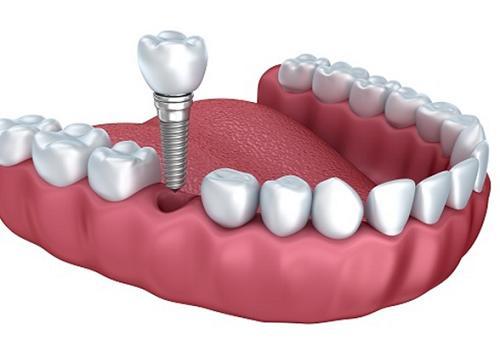 Kết quả hình ảnh cho Loại răng implant nào mới ra có khả năng đẩy nhanh