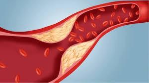 Rối loạn lipid máu ngày càng phổ biến