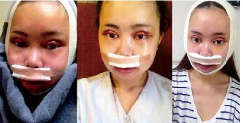 Wu Yuqing đã trải qua 10 hạng mục phẫu thuật, từ mắt, mũi, môi, tới xương hàm.