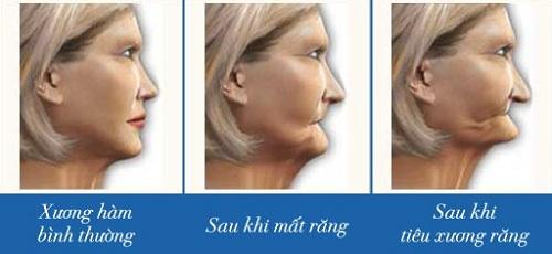 Mất răng làm xương hàm bị tiêu và dẫn đến hiện tượng móm