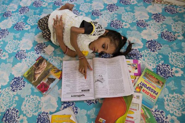 Lúc mới sinh, Sabal bình thường như bao đứa trẻ khác, tuy nhiên khoảng 20 ngày sau các bác sĩ nhận thấy có những thay đổi trên cơ thể cô.