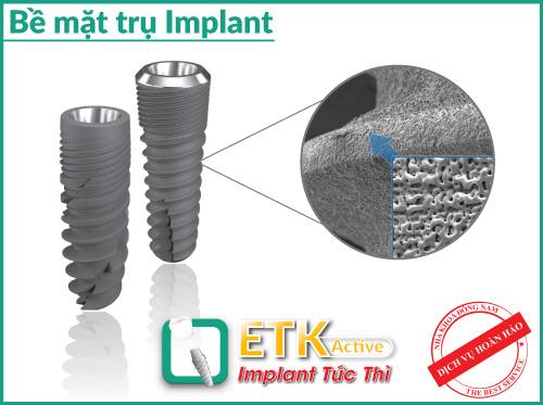 (Implant ETK Active)