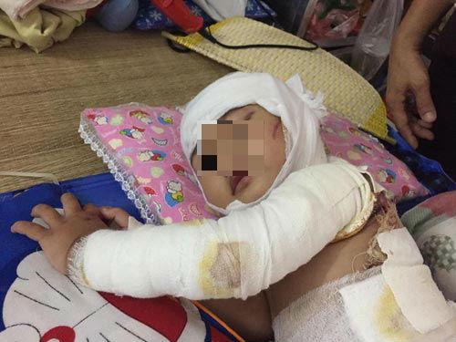 Cháu bé Nguyễn B.U (2 tuổi, ở Vĩnh Phúc) bị bỏng gần như khắp cả cơ thể.