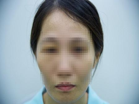 Đau nửa mặt kịch phát dễ nhầm lẫn với các bệnh thông thường ở răng. (Ảnh minh hoạ)