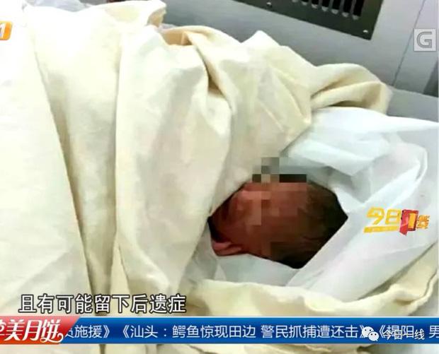 Bé gái dù đã qua cơn nguy kịch nhưng tình trạng sức khỏe vẫn chưa ổn định.