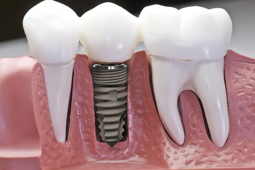 (Kỹ thuật trồng răng Implant)