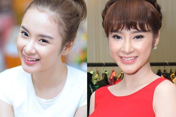 Nói đến chuyện thẩm mỹ của Angela Phương Trinh thì đúng là nói mãi không hết, bởi cô là một người đẹp vướng nhiều nghi án thẩm mỹ nhất showbiz Việt, với không ít lần chịu hậu quả của thẩm mỹ như mũi lệch, cằm gồ ghề biến dạng...