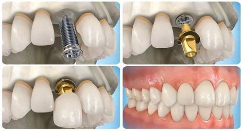 Kỹ thuật cấy ghép Implant phục hồi răng mất