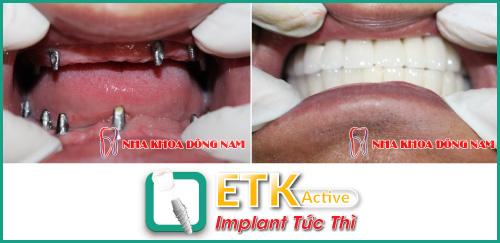 (Implant ETK Active giúp tiết kiệm thời gian trồng răng giả cho bệnh nhân)
