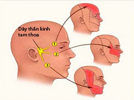 Dây thần kinh số V. còn gọi là dây thần kinh tam thoa.