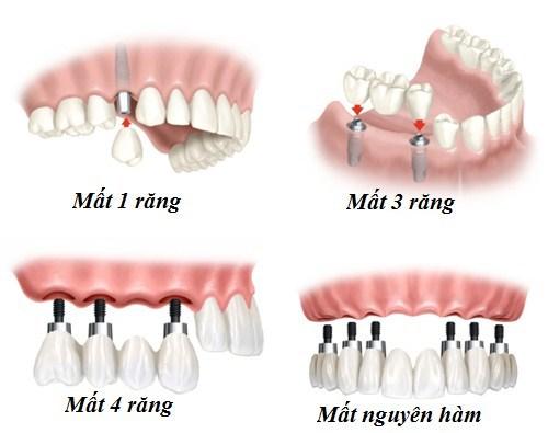 (Trồng răng Implant khôi phục lại cho tất cả các trường hợp mất răng khác nhau)