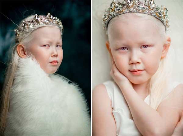 Mẹ của cô bé là Elena cho hay, Nariyana là đứa trẻ duy nhất bị bạch tạng trong gia đình. Elena có ba người con, gồm Karina 14 tuổi, Nariyana 8 tuổi và con út Ayaan mới hơn 10 tháng tuổi.