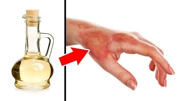 Nếu chẳng may bị bỏng nhẹ, bạn hãy nhớ đến giấm táo. Nhúng phần bị bỏng vào hỗn hợp giấm và nước, bạn sẽ thấy đỡ đau hơn. Ngoài ra, nhờ đặc tính khử mùi của giấm, bạn có thể bôi lên mặt để tránh những loài động vật hoang dã tấn công.