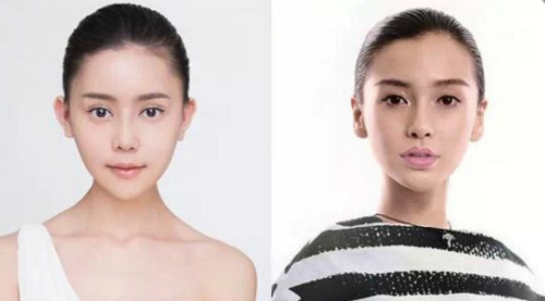 Khi khuôn mặt hết sưng nề, Wu Yuqing (trái) đã có đôi mắt, sống mũi, khuôn cằm giống với Angelababy (phải).