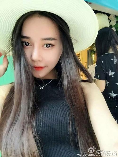 Wu Yuqing cho biết, phải mất gần một năm, khuôn mặt cô mới trông tự nhiên hơn.