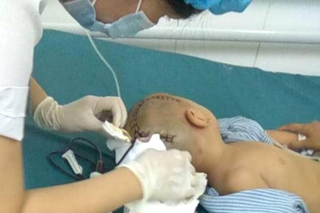 Cháu Bảo được mổ cấp cứu tại Bệnh viện Đa khoa tỉnh Hưng Yên. Ảnh: Đ.Tùy