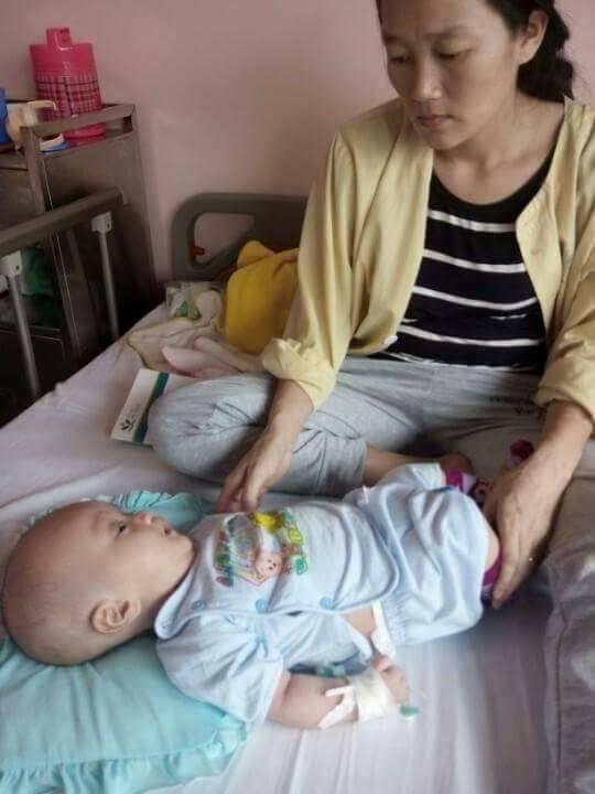 Chứng bệnh não úng thủy khiến bé Trung Kiên quấy khóc suốt ngày đêm. Ảnh: CTV