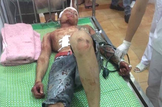 Nạn nhân Bùi Ngọc Anh và Nguyễn Đức Toàn bị thương nặng nhất. Ảnh: K.Minh