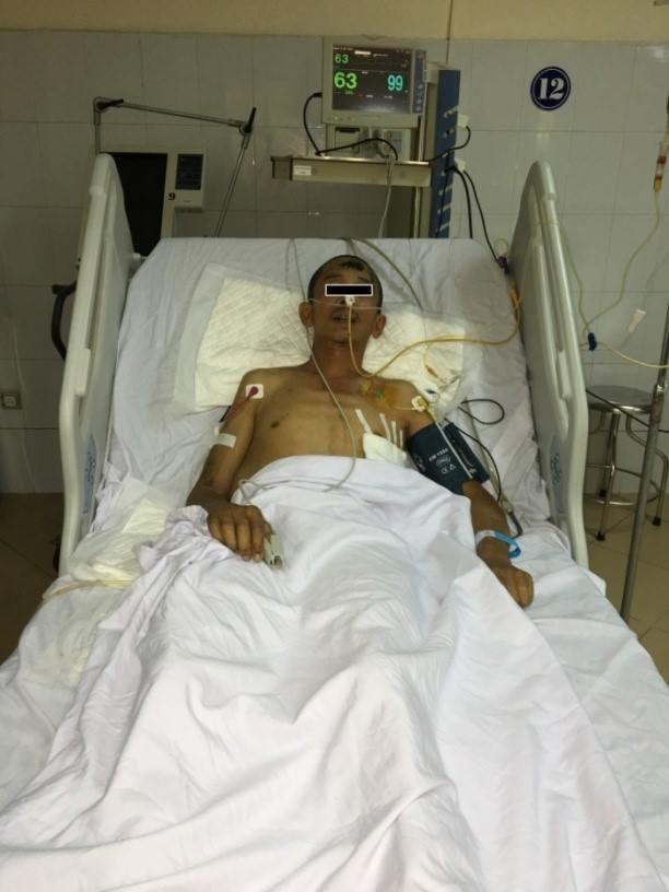 Ông K - một công nhân xây dựng bị tai nạn, rơi từ tầng 5, đa chấn thương - đã được Bệnh viện 108 cứu sống