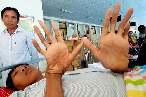 Đôi bàn tay dài và to khác thường của Trung. Ảnh: Phúc Hưng.