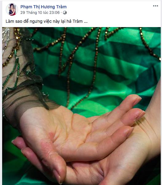 Bàn tay nhiều mảng màu khác nhau của Hương Tràm khiến người hâm mộ lo lắng. Ảnh chụp màn hình facebook nhân vật
