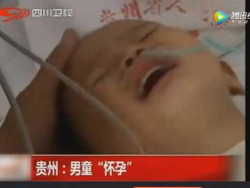 Trong bụng Khang Khang thật sự có một bào thai đang phát triển