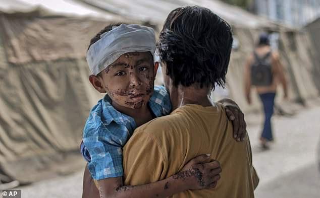 Những đứa trẻ bị dịch bệnh chỉ sau một tuần gặp thảm họa.