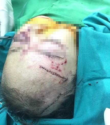 Nhiều vết thương ở vùng mặt bé Y.