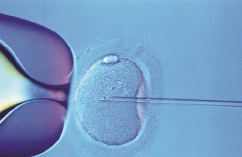 Chọn lọc tinh trùng và thụ tinh nhân tạo.