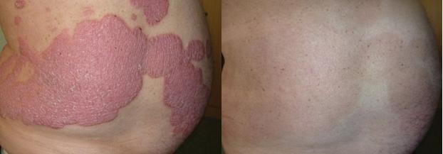 Hình ảnh: Trước và Sau 8 tuần sử dụng sản phẩm Dr Michaels từ thảo dược.