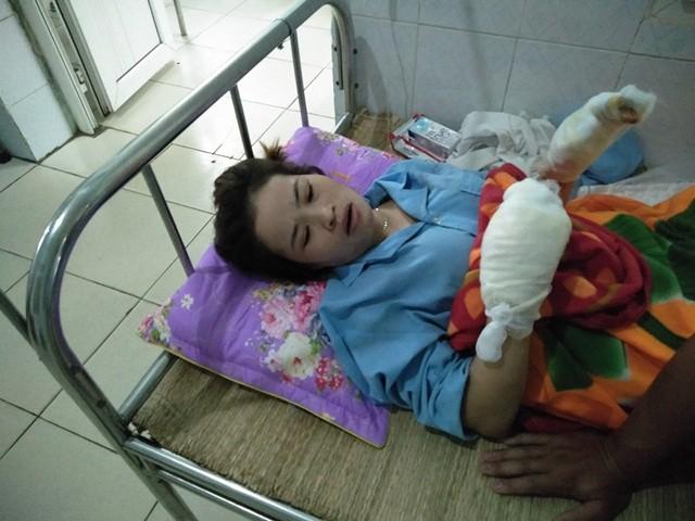 Chị Thu đã qua cơn nguy kịch, hiện sức khỏe dần ổn định, tuy nhiên toàn thân đau nhức do những vết bỏng