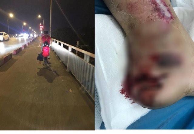 Trong lúc anh trai đèo đi xin tiền, không may bé gái 5 tuổi bị kẹp chân vào bánh xe đạp dẫn đến bị thương.