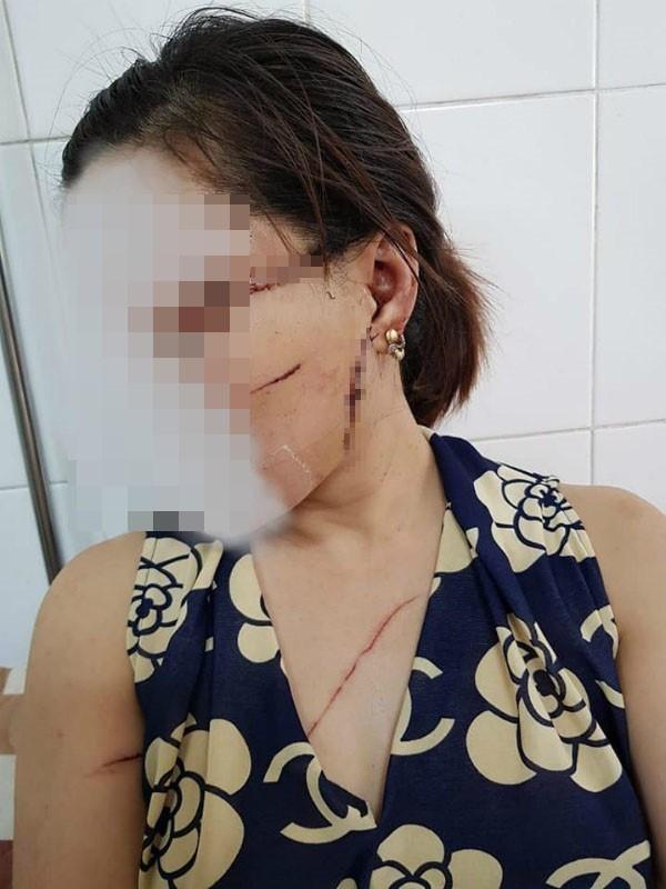 Nhiều vết thương trên cơ thể chị Oanh do Vương gây ra. Ảnh: N.H.