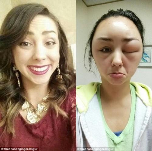 Nhiều năm trước, một cô gái người Mỹ cũng bị biến dạng mặt khi sử dụng thuốc nhuộm tóc.
