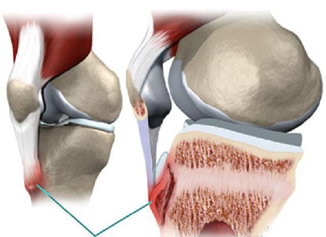 Ung thư xương cũng có liên quan tới việc vận động quá mức